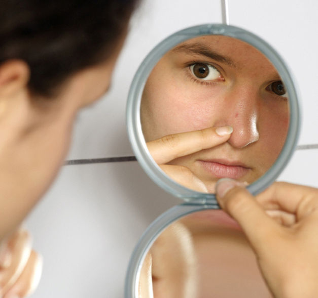 Pimples and all Things Facial-6V